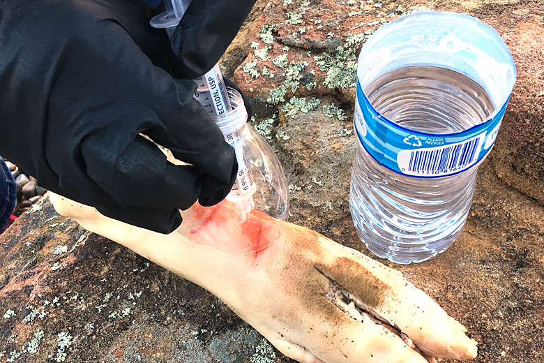 Backcountry Emergencies: Why Wound Cleaning is One of the